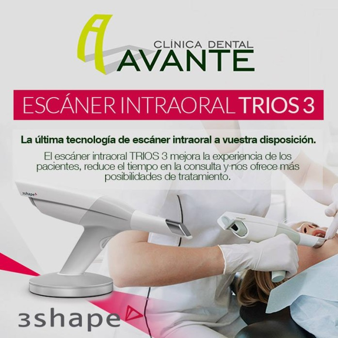 escaner intraoral sevilla