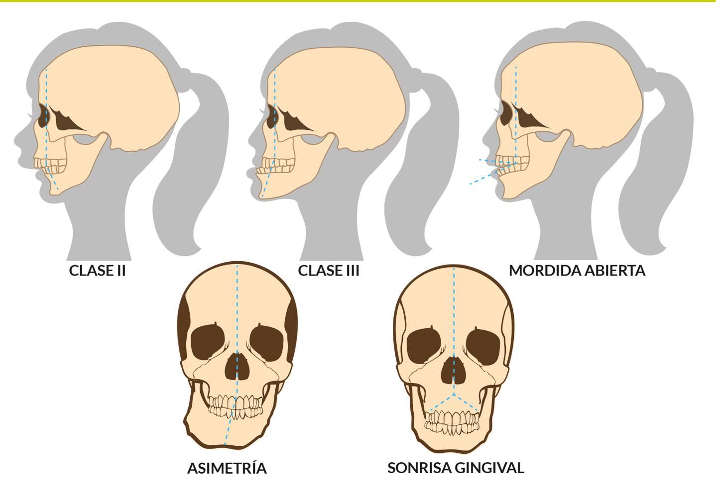 Cirugía Ortognática Sevilla