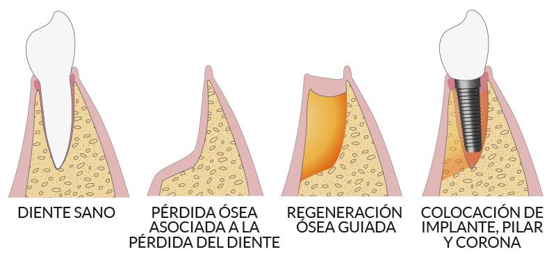 Avante - Cirugía bucal en Sevilla